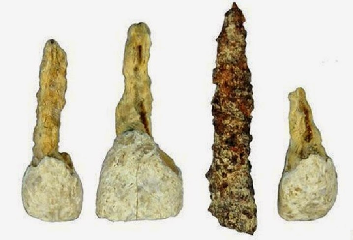 Who Invented Iron ~ Dental implant discovered in iron age skeleton the