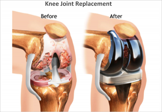 Before And After Knee Replacement