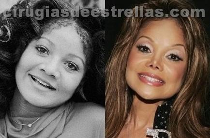 La Toya Jackson antes y después