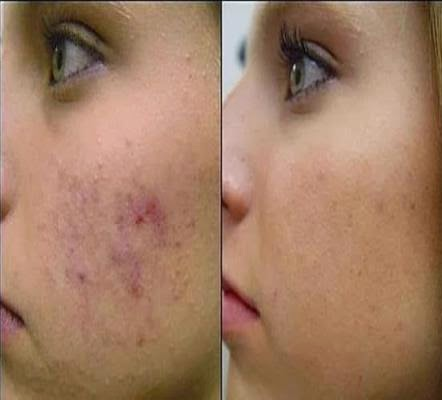 how to get clear face without pimples and marks