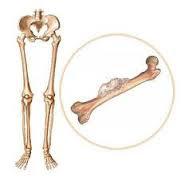 Pengobatan Tradisional Kanker Tulang
