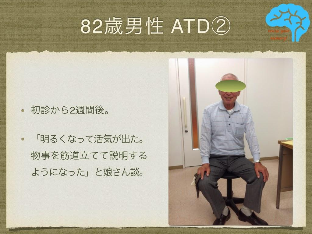 アルツハイマー型認知症 82歳男性 改善後の写真