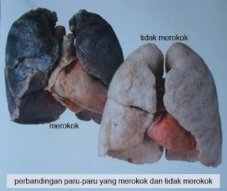 paru-paru orang yang merokok