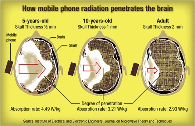 brain and cell phone radiation affects