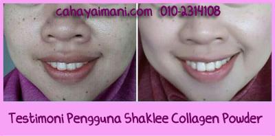 Kesan Pengambilan Shaklee Collagen Powder