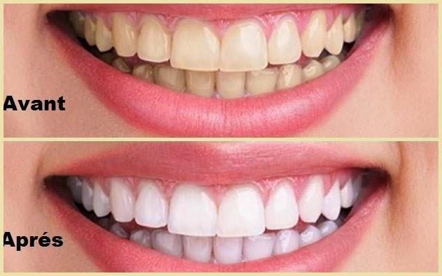 Poudre pour blanchir les dents - Enlever tartre dents avec vinaigre blanc ...