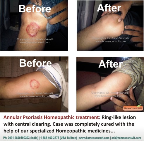 Find the Best Price for Psoriasis Treatment in Abu Dhabi 2
