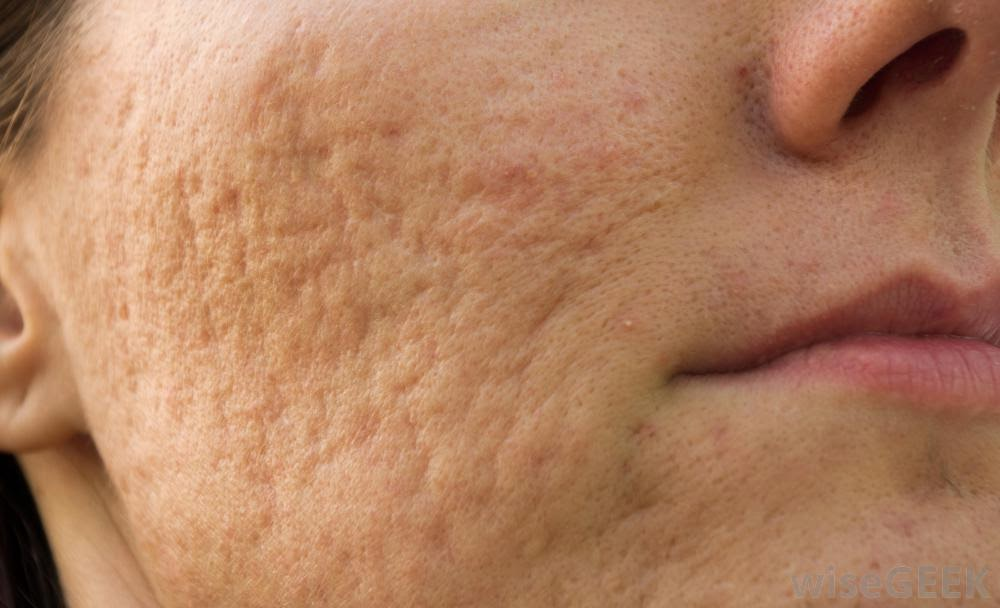 Effective Treatment For Acne Scars