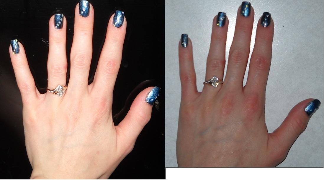 Girly-Girl\'s ileostomy Blog: Long Nails with an Ileostomy??