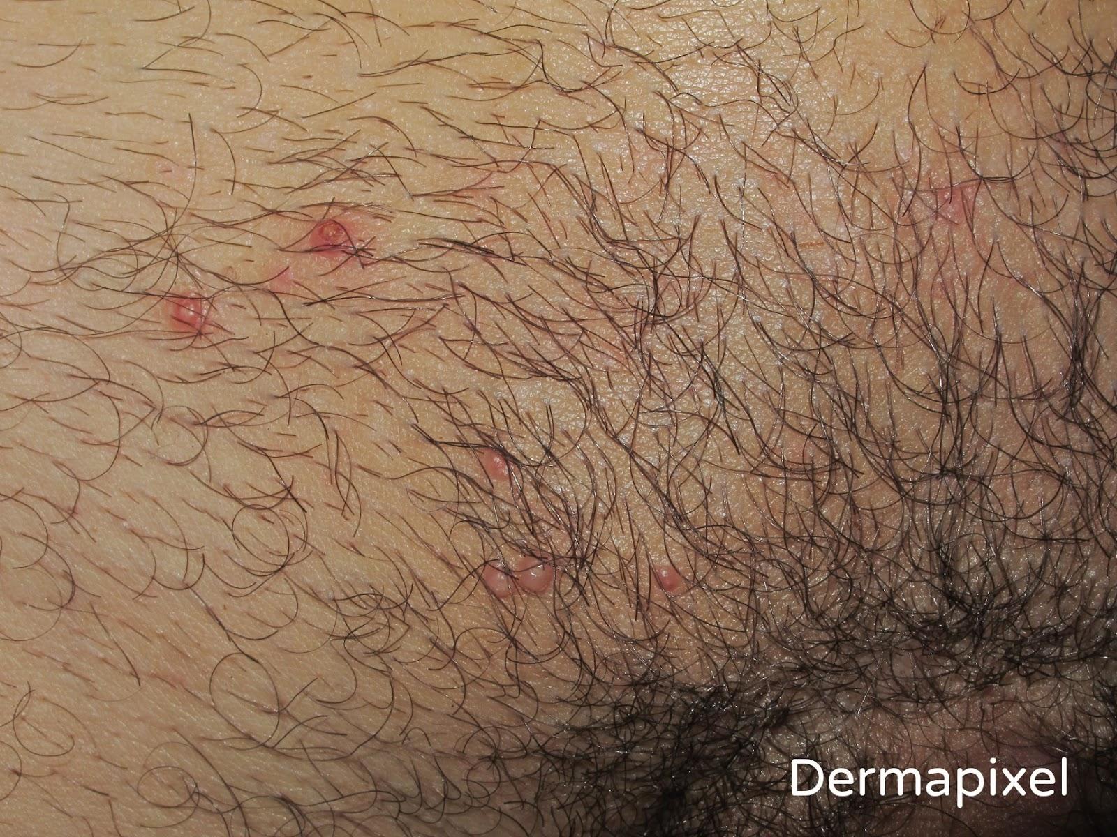 Protuberancias rojas en la vagina externa