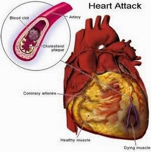 Punca Jantung Tersumbat