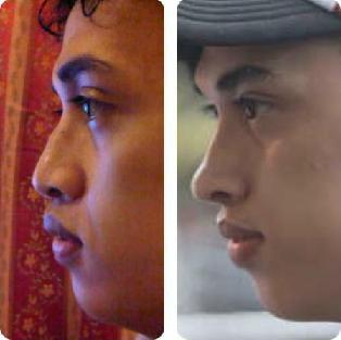 ... foto perbandingan vokalis Rumor sebelum dan sesudah operasi plastik