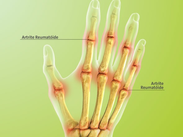 Exames para detectar artrite reumatoide