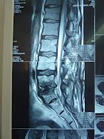 Cirugia de columna fallida