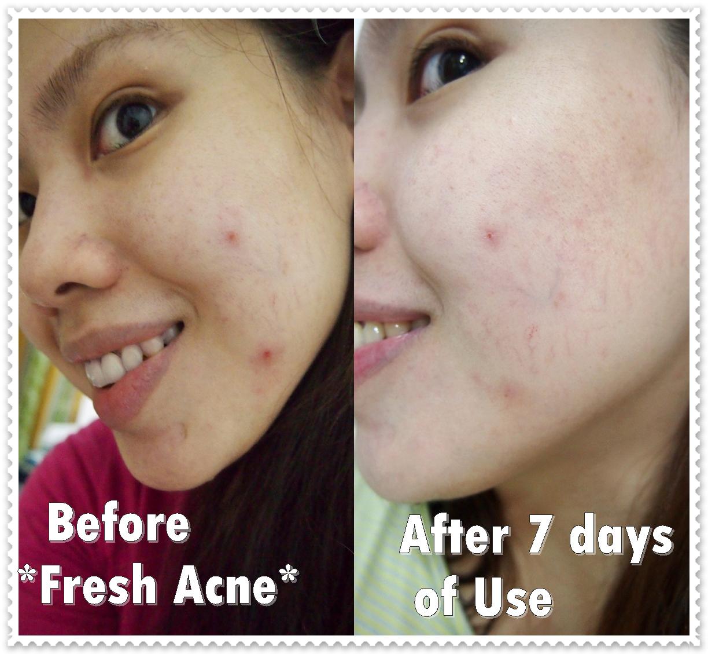 rosal 28 acne