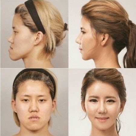 operasi plastik, cara operasi plastik, operasi plastik sukses, operasi gagal, operasi korea, operasi di korea, artis korea
