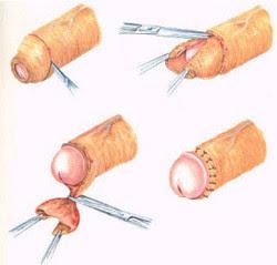 fimosis-circuncision