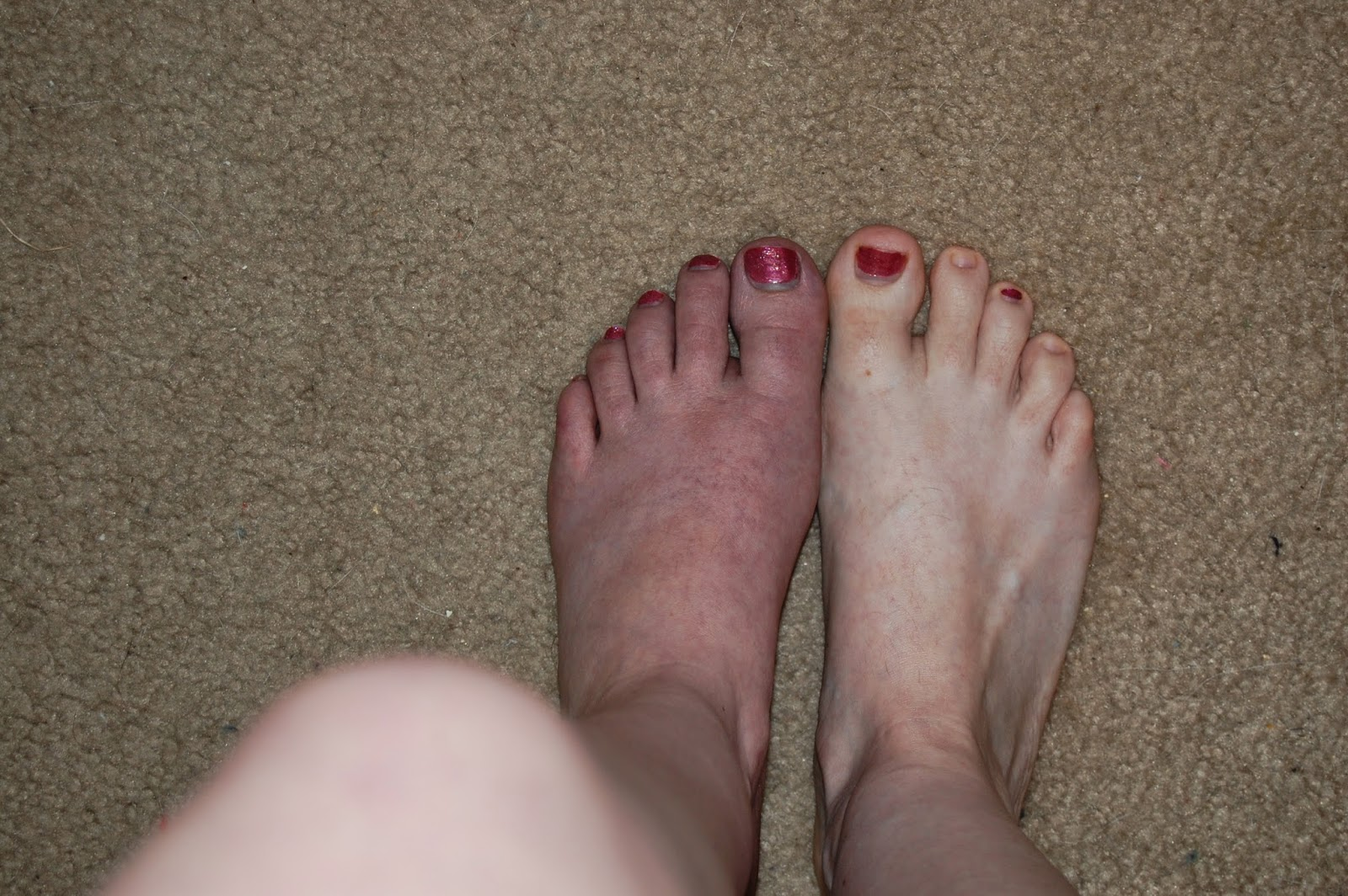 Squishy lump on top of foot - Marie