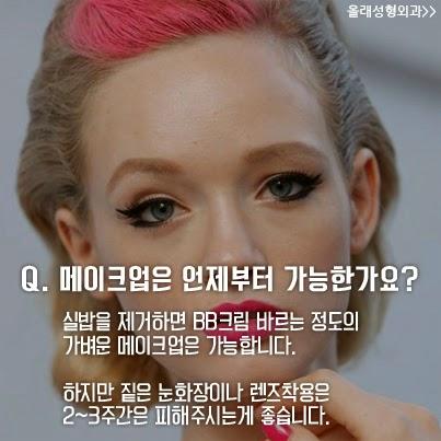 눈성형,쌍꺼풀 수술,매몰법,눈매교정,안검하수,앞트임,뒤트임,자연유착