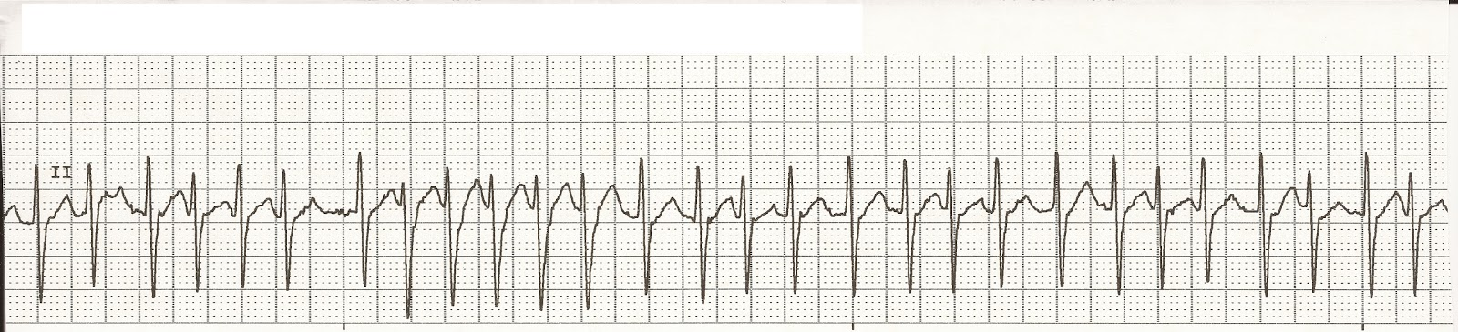 Acute Management of Atrial Fibrillation: Part I Rate and