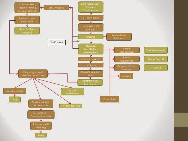 Etiologi Penyakit Jantung Koroner