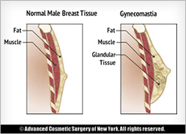 Symptoms of Gynecomastia Problems in Men