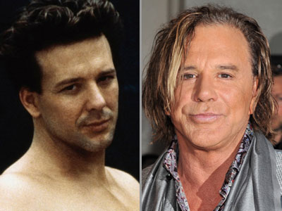 Male celebrity plastic surgery | Gallery | Wonderwall.com