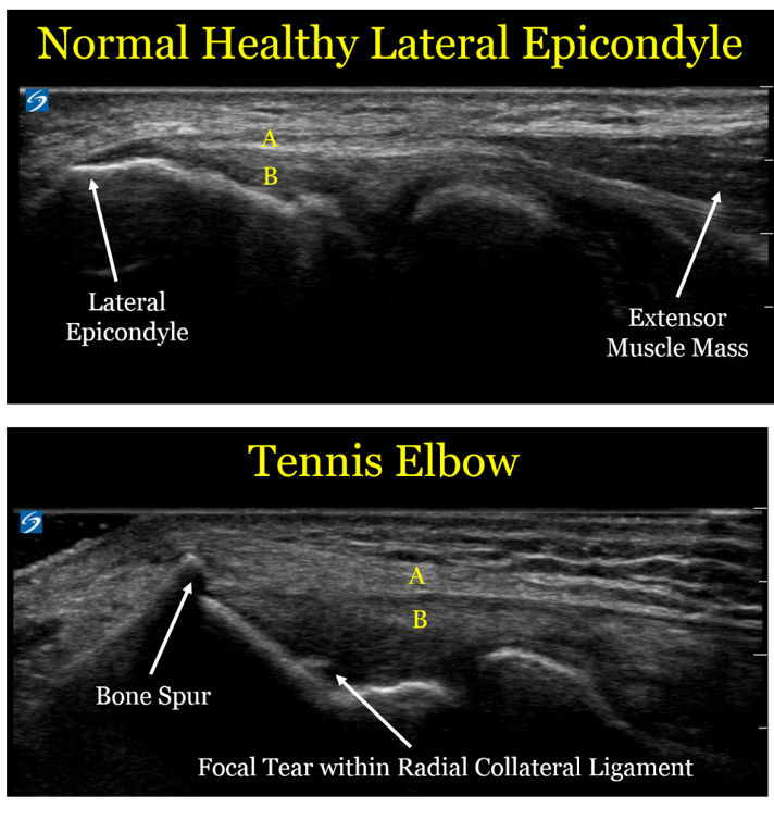 Ultrasound For Tennis Elbow