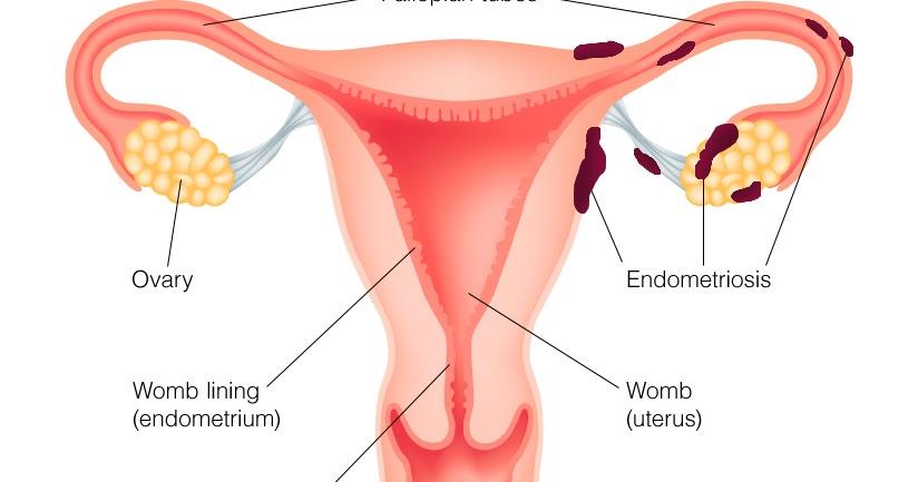 Homeopathy for Endometriosis