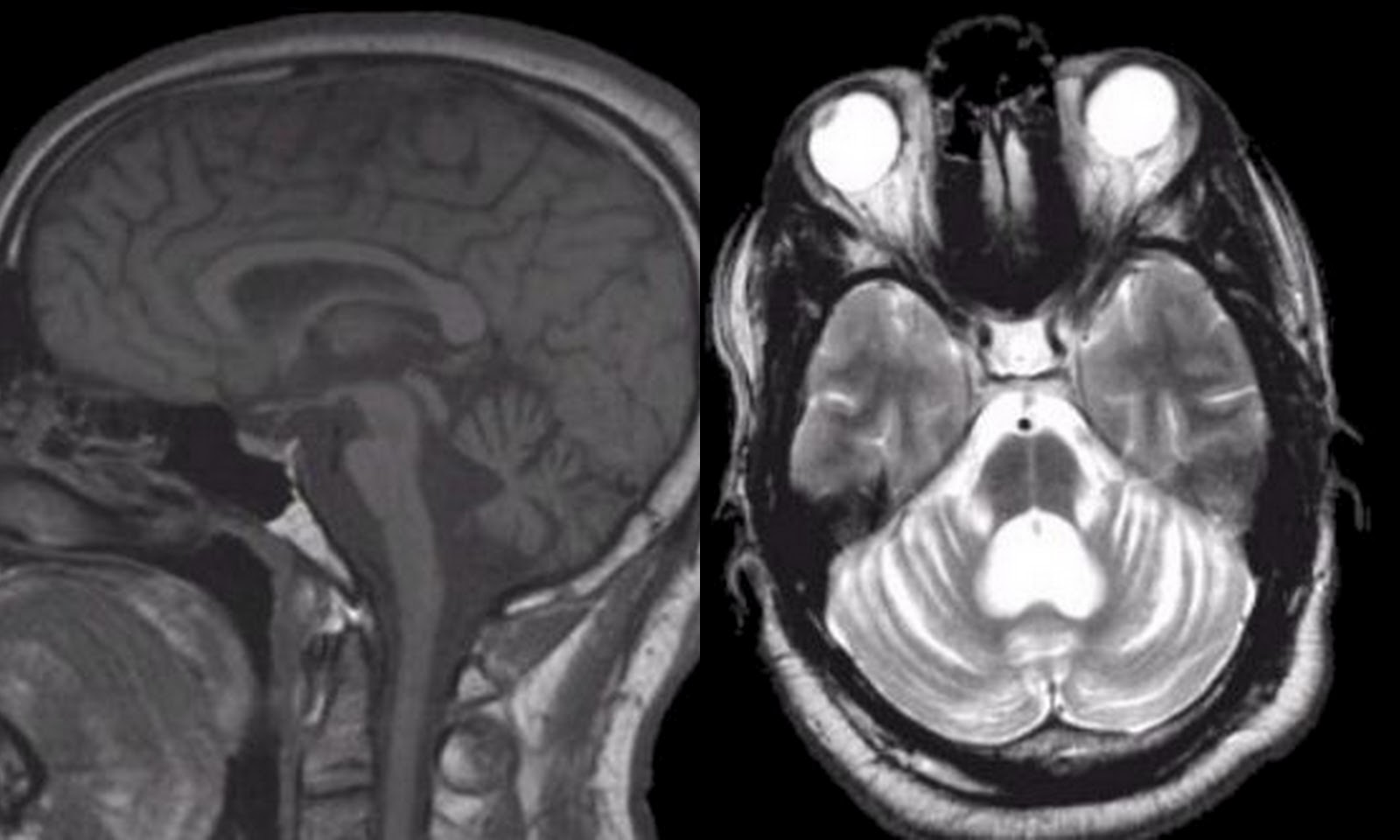 Dr Balaji Anvekar\'s Neuroradiology Cases: Spino Cerebellar ...