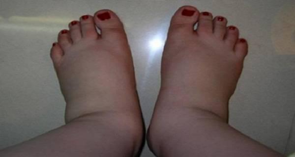 legs swollen