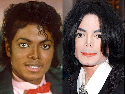 Michael Jackson Plastic Surgery Before After