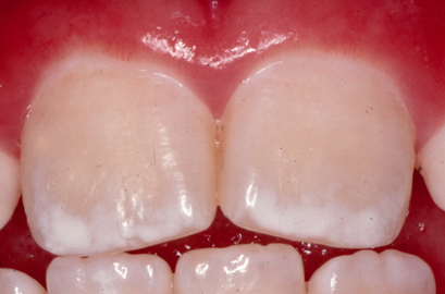 how to get rid of fluoride stains on teeth