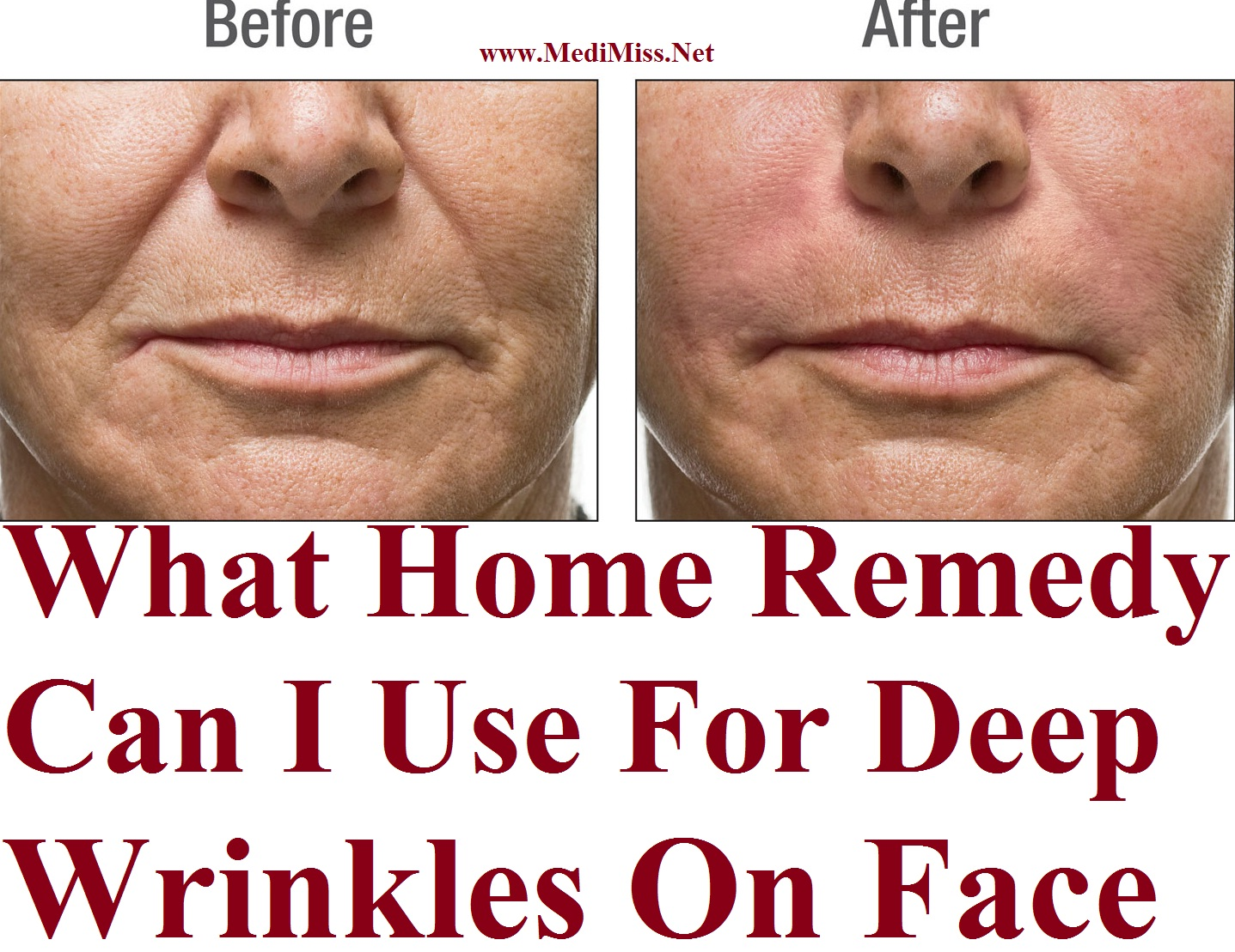 What Home Remedy Can I Use For Deep Wrinkles On Face ...