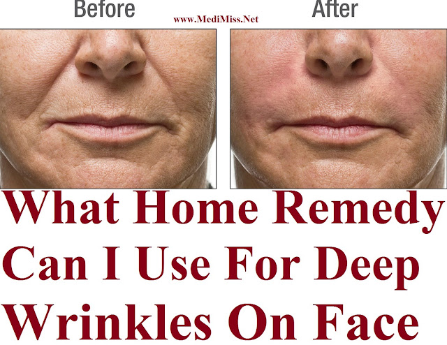 Best Natural Remedy For Deep Wrinkles