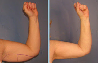 liposuccion brazos