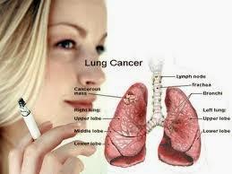 Gejala Kanker Paru-paru yang Tidak disadari