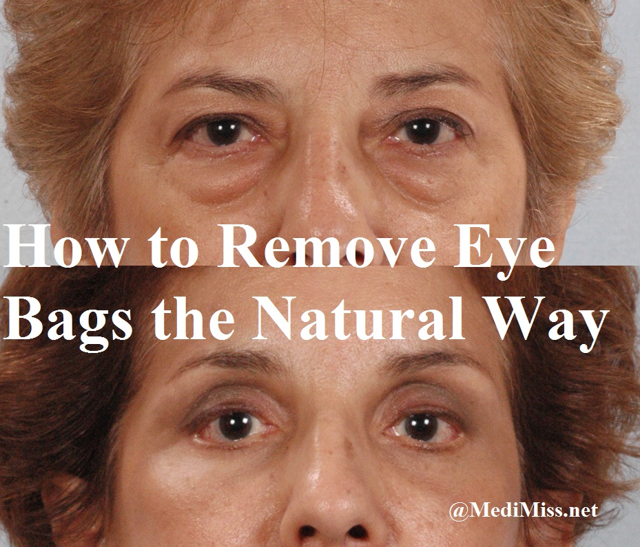 Natural Help For Bags Under Eyes