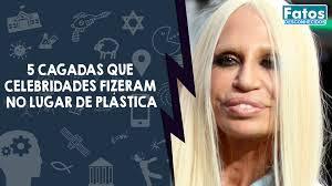 5 cagadas que celebridades fizeram no lugar de plásticas