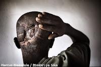 Massoua Abanerus, victime de la brutalité des rebelles LRA au Congo, Uele