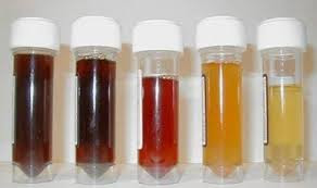 pengobatan alami hematuria atau kencing darah