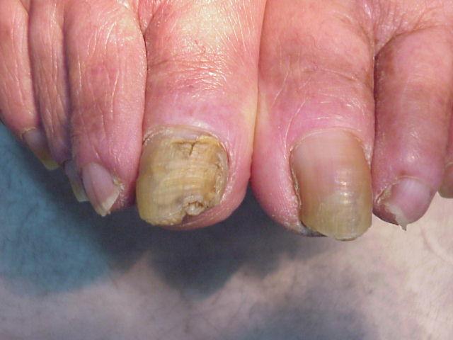 El hongo enconado las uñas