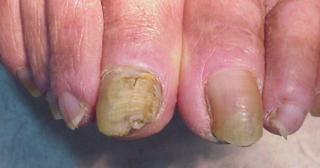 Los análogos del medio del hongo de las uñas en los pies