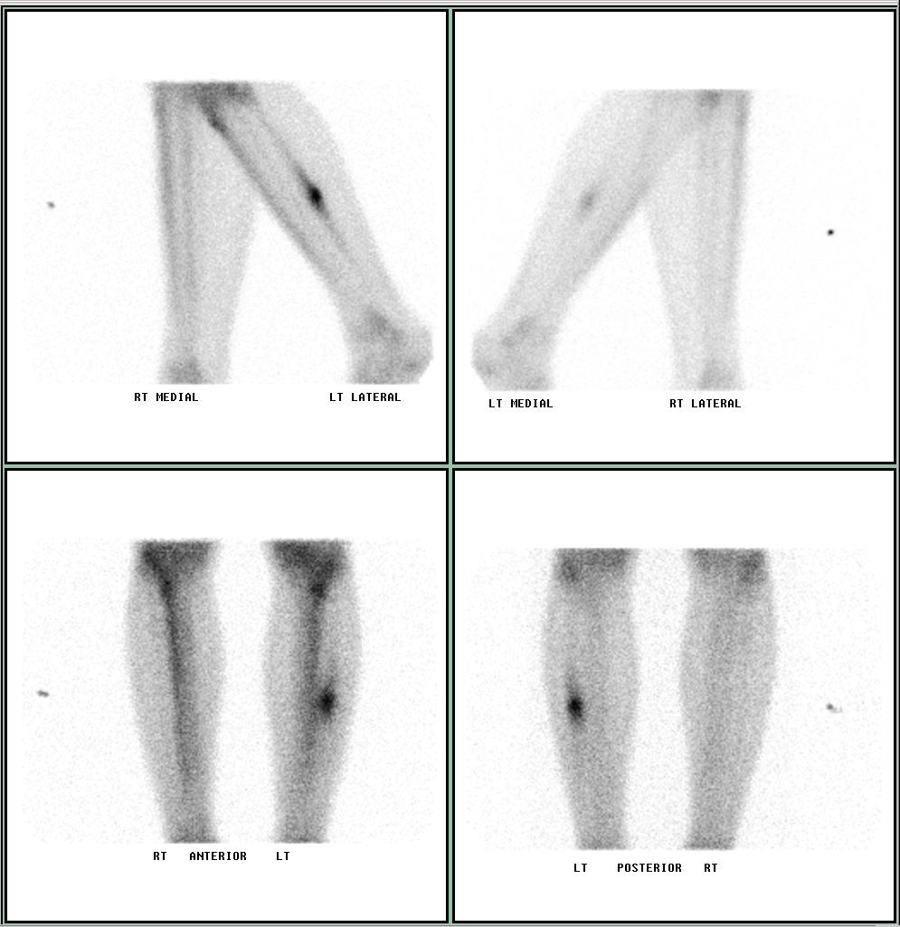 The stress fracture is a small crack in the bone without displacement -1.bp.blogspot.com