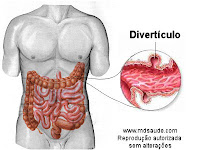 Divertculo