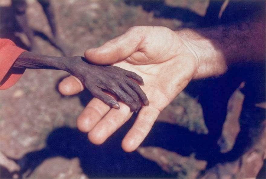 Fight against poverty
