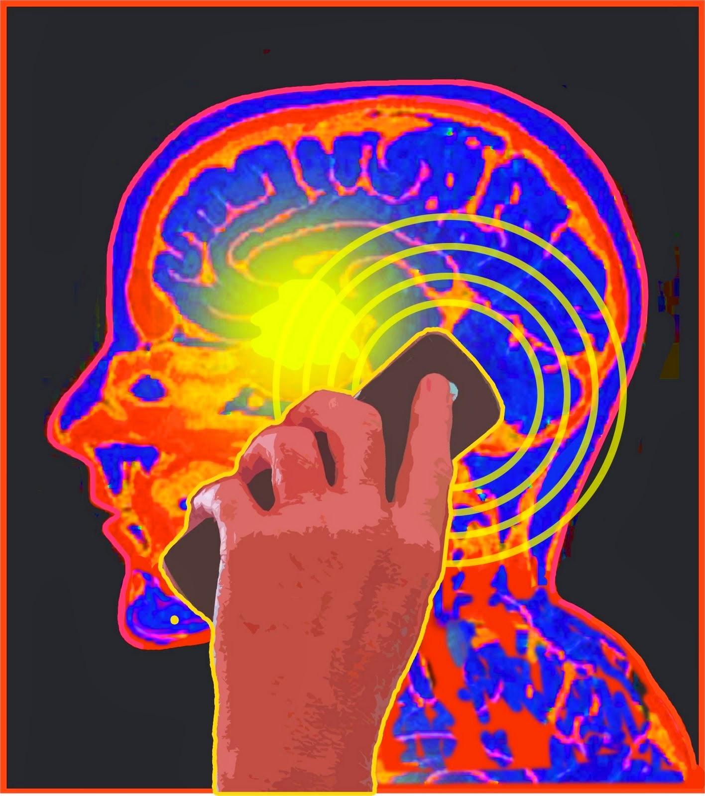 faktor risiko dan penyebab kanker otak
