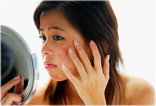 Is Your Acne Under Control