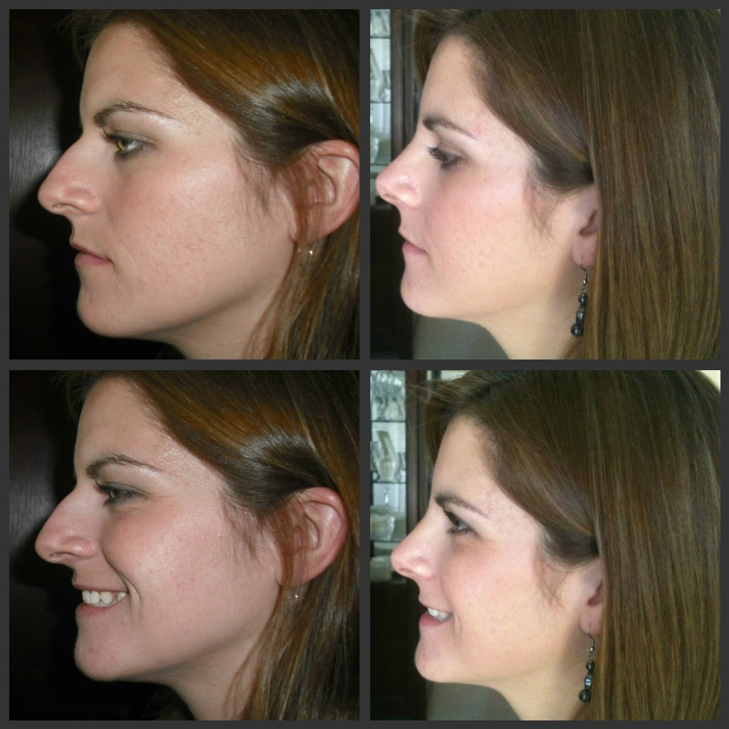 My Rhinoplasty Recovery Before And After Pictures Day 5. Oncor Electric Delivery Dallas Tx. Barry University Ot Program What Is Breast. Amazon Android Developer Magellan Health Care. American Access Auto Insurance. Assisted Living Facilities Vancouver Wa. Clinical Trial Project Management. Facility Managment Software Online Rn Degree. Warehouse Apartments London Vote Here Signs