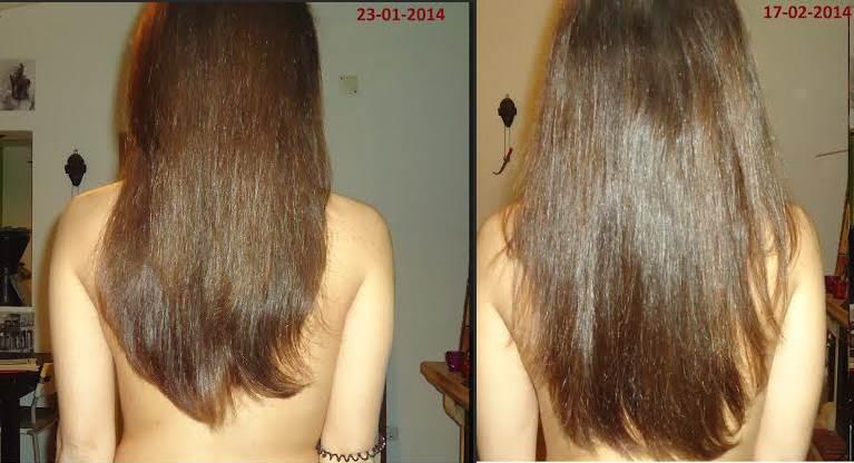 Antes e Depois do Crescimento dos Cabelos - parte 5